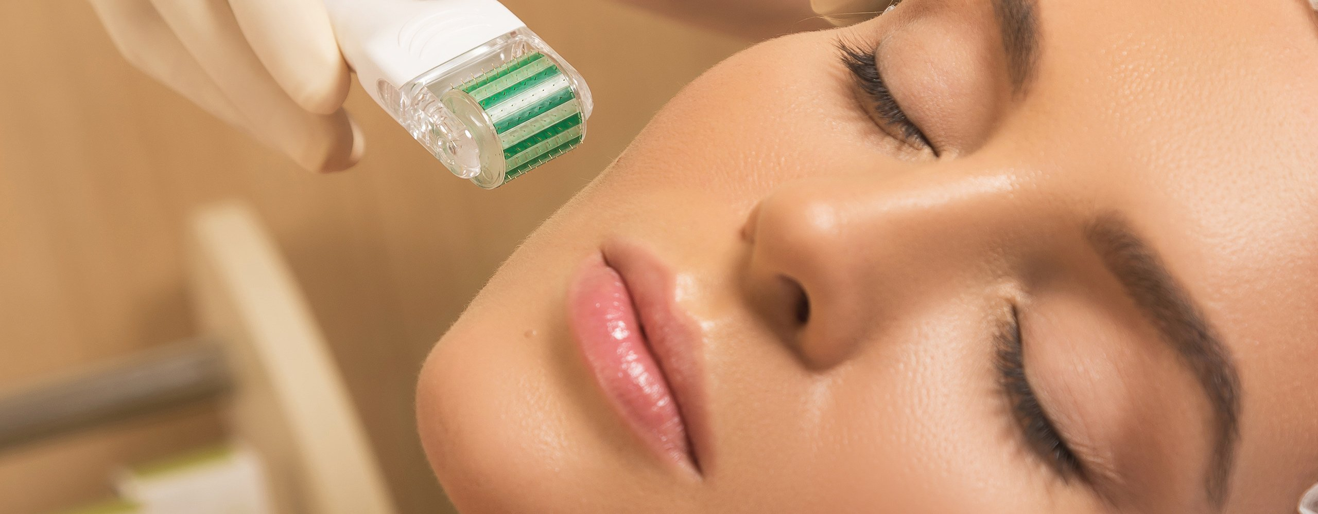 Micro Needling - Absolute Beauty By Sarah | Beauty Salon Kildare