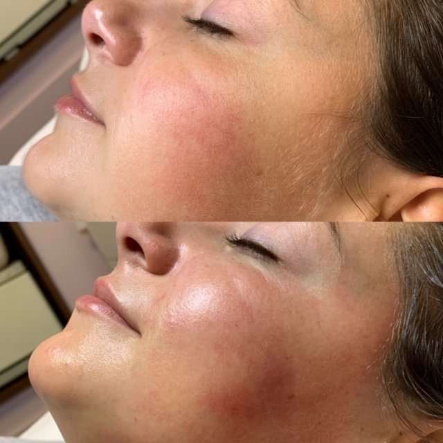 Dermaplaning - Absolute Beauty by Sarah   Beauth Salon Maynooth, Kildare
